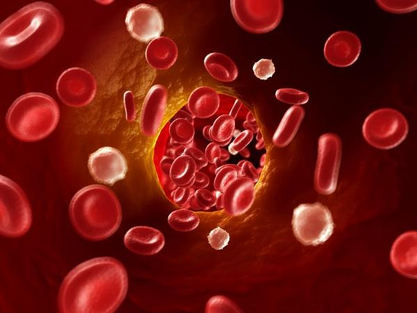 3d rendered illustration of arteriosklerosis