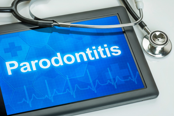 tablet with the diagnosis of periodontitis
