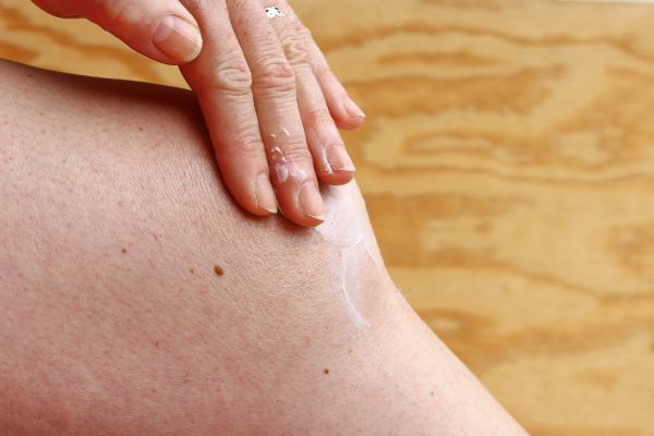 a woman rubs her knee in