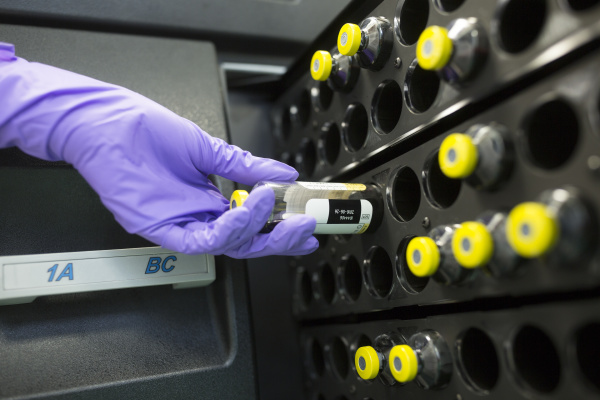 check of microbial contamination