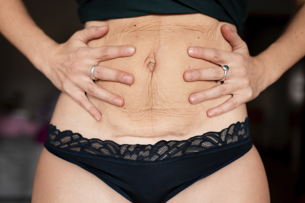 postpartum flabby and wrinkled belly skin