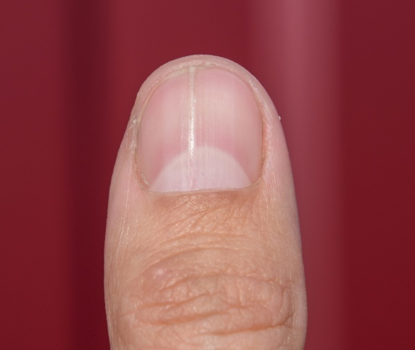 forked nail on the thumb dilation