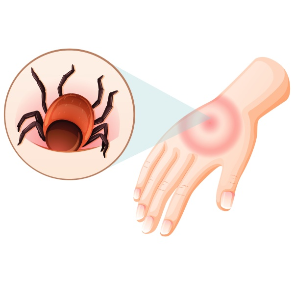 tick bite human hand