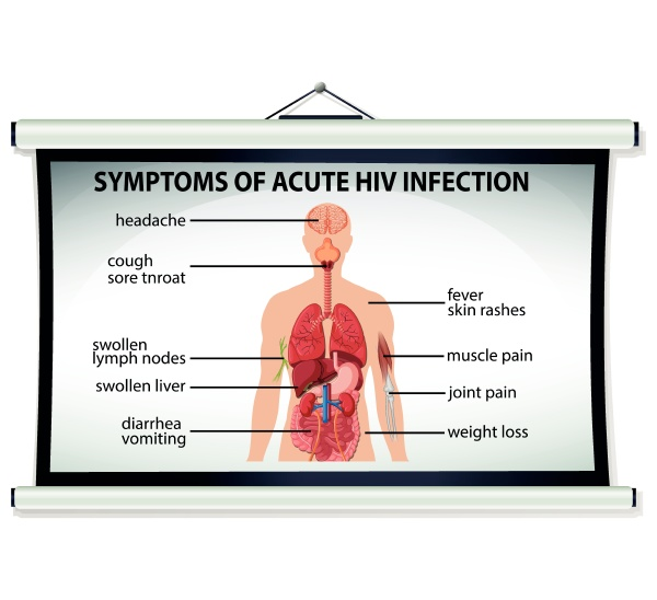 chart showing symptoms of acute hiv