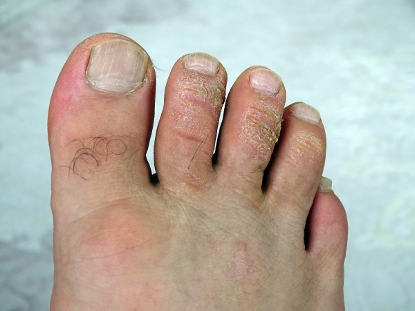 fungal calluses on the toes itchy