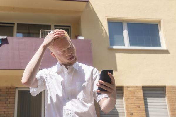 germany cologne albino man