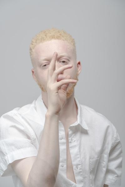 studio portrait of albino man in