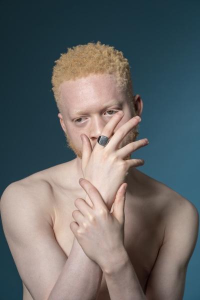studio portrait of shirtless albino man