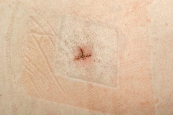 healing suture scar after surgery