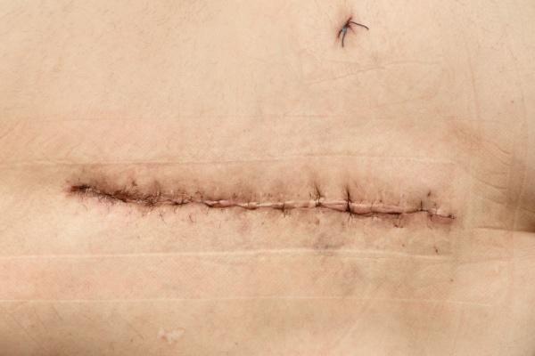 postoperative suture on human skin