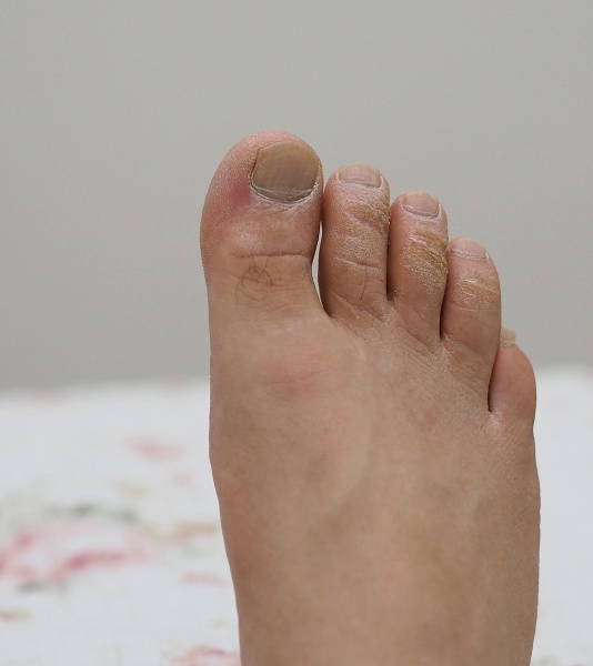 neglected male toes fungus toes fungal