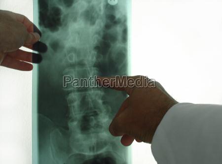 x-ray, photograph - 108806