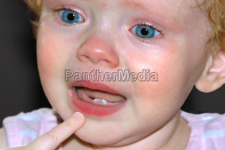 teething hurts