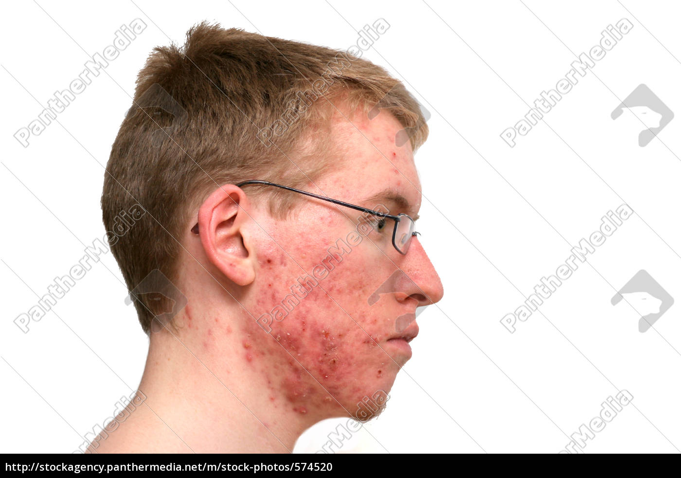 after, a, week, with, isotretionoin - 574520