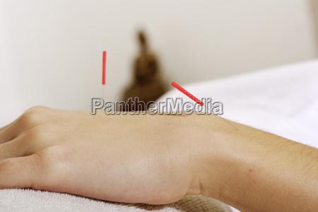 acupuncture - 1607791