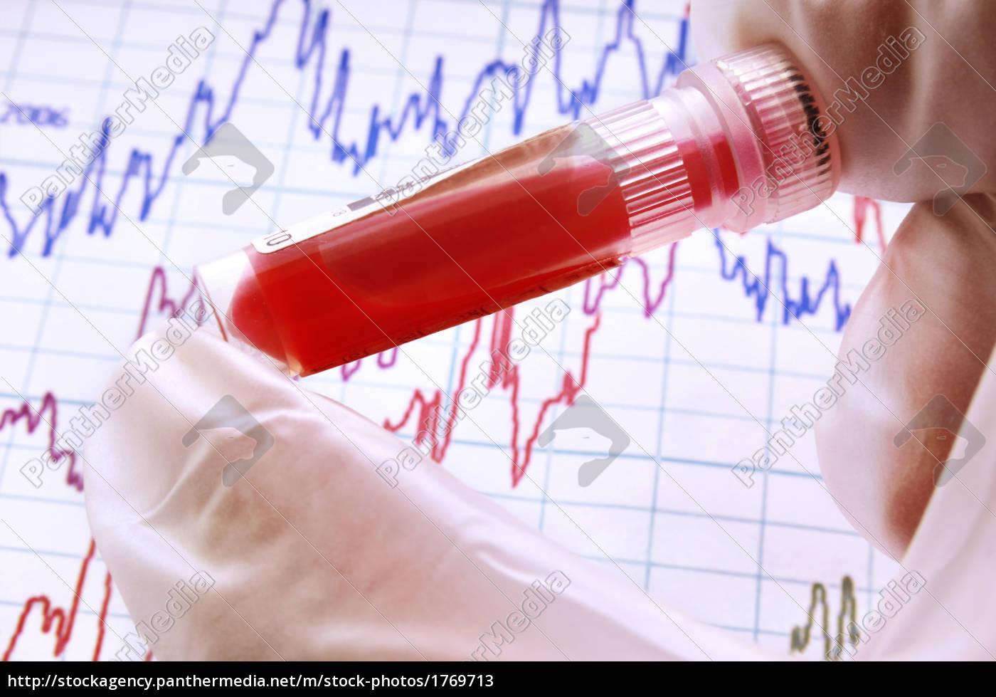 blood, analysis - 1769713