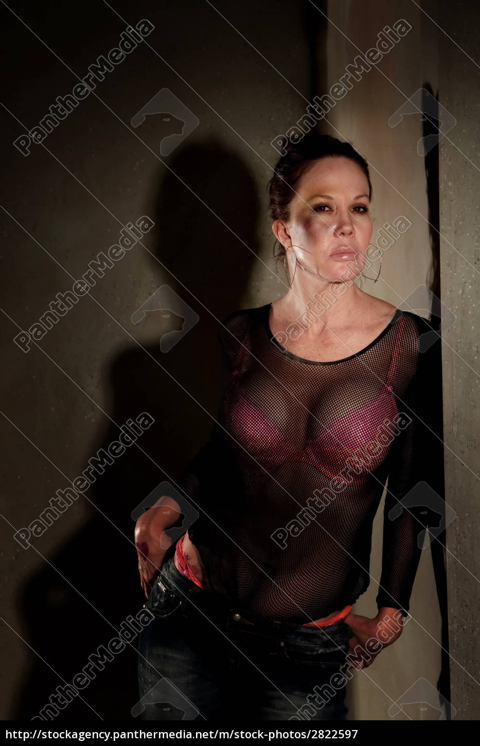 prostitute, in, hallway, with, bruise, on - 2822597