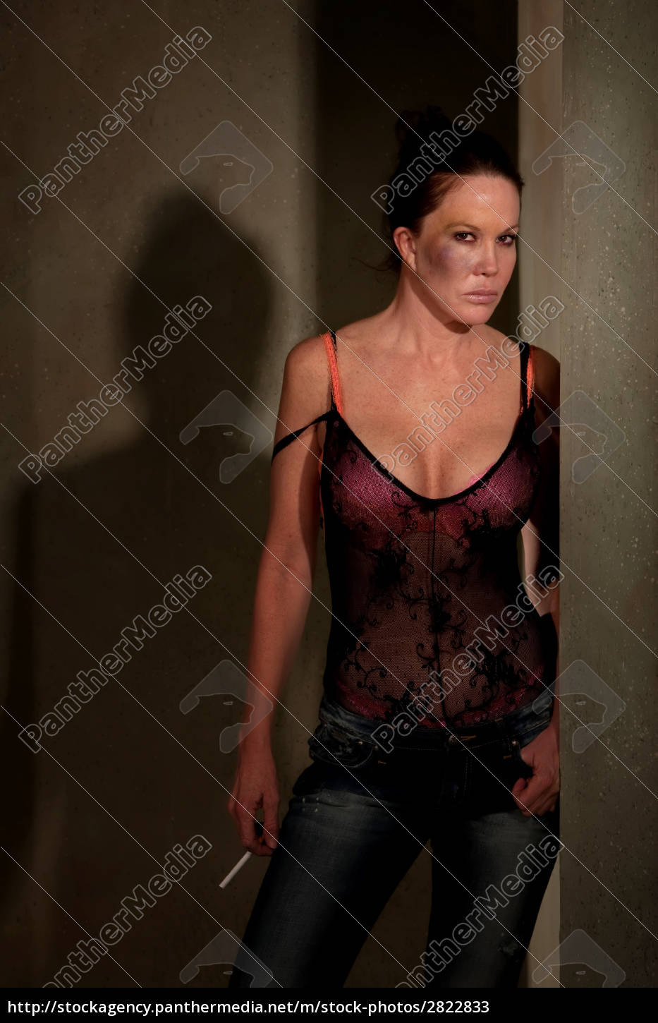 prostitute, in, hallway, with, bruise, on - 2822833
