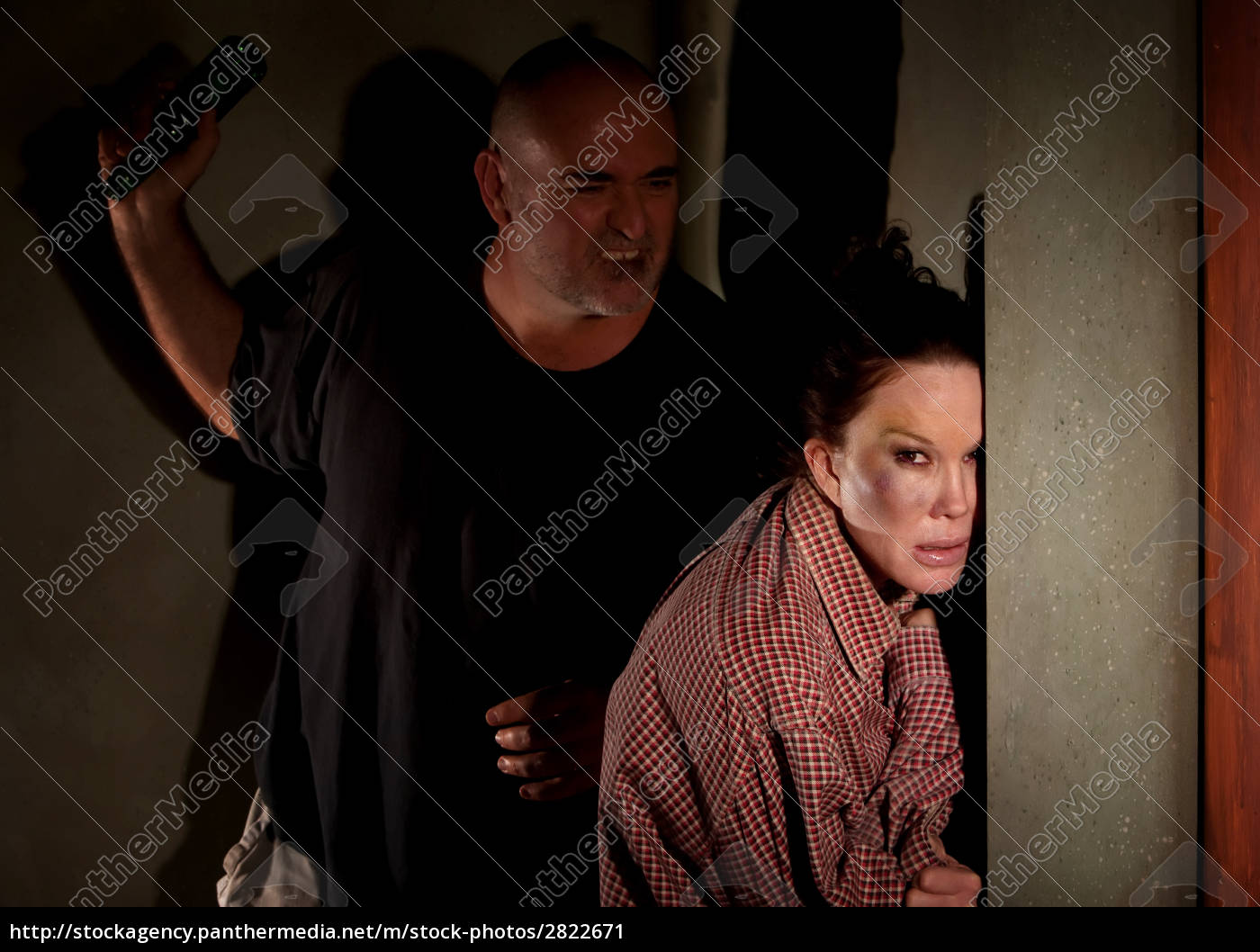 woman, in, hallway, with, bruise, on - 2822671