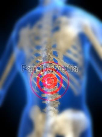female skeleton painful back