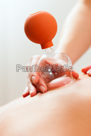 patient at the physiotherapy cupping