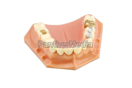 dental model with different treatments