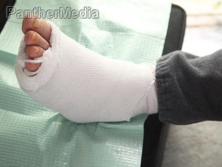 diabetic foot injury
