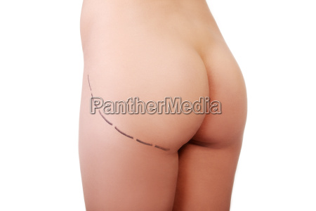 womans buttock prepared to plastic surgery