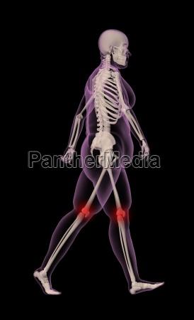 overweight female skeleton walking
