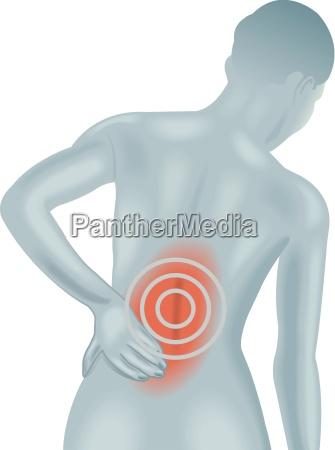 back, pain - 10329157