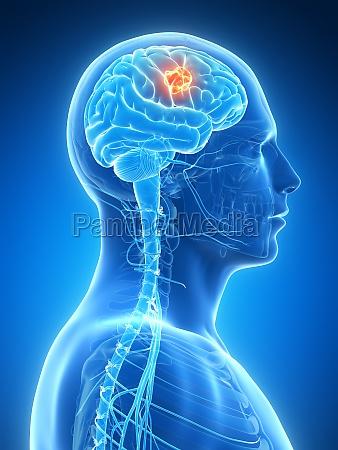 3d rendered illustration brain tumor