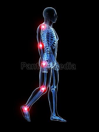 3d rendered medical illustration painful