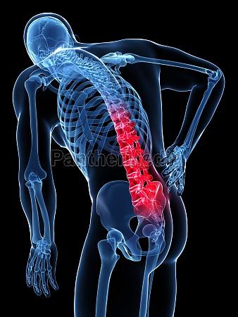 3d rendered illustration backache male