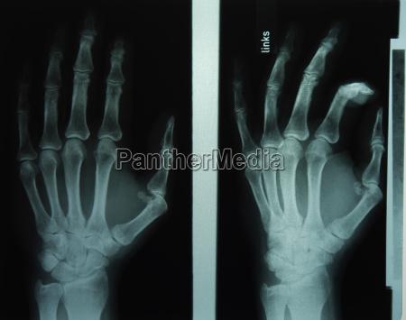 radiograph hands