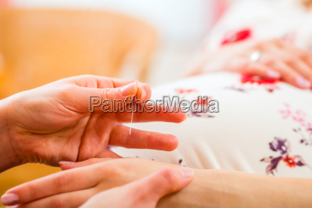midwife gives pregnant woman acupuncture