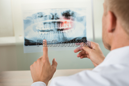 male doctor with x ray