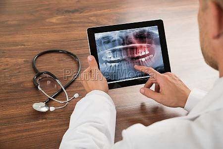 doctor looking at human teeth x