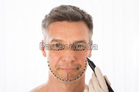 surgeon drawing correction lines on man