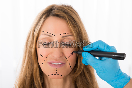 surgeon drawing correction lines on woman