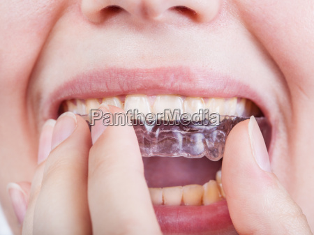 young woman puts clear aligner close