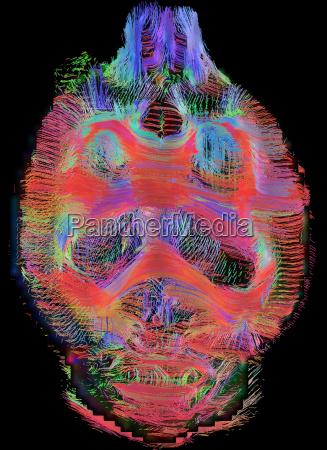 coronal view of rat brain connectivity