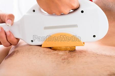 therapist hand giving laser epilation treatment