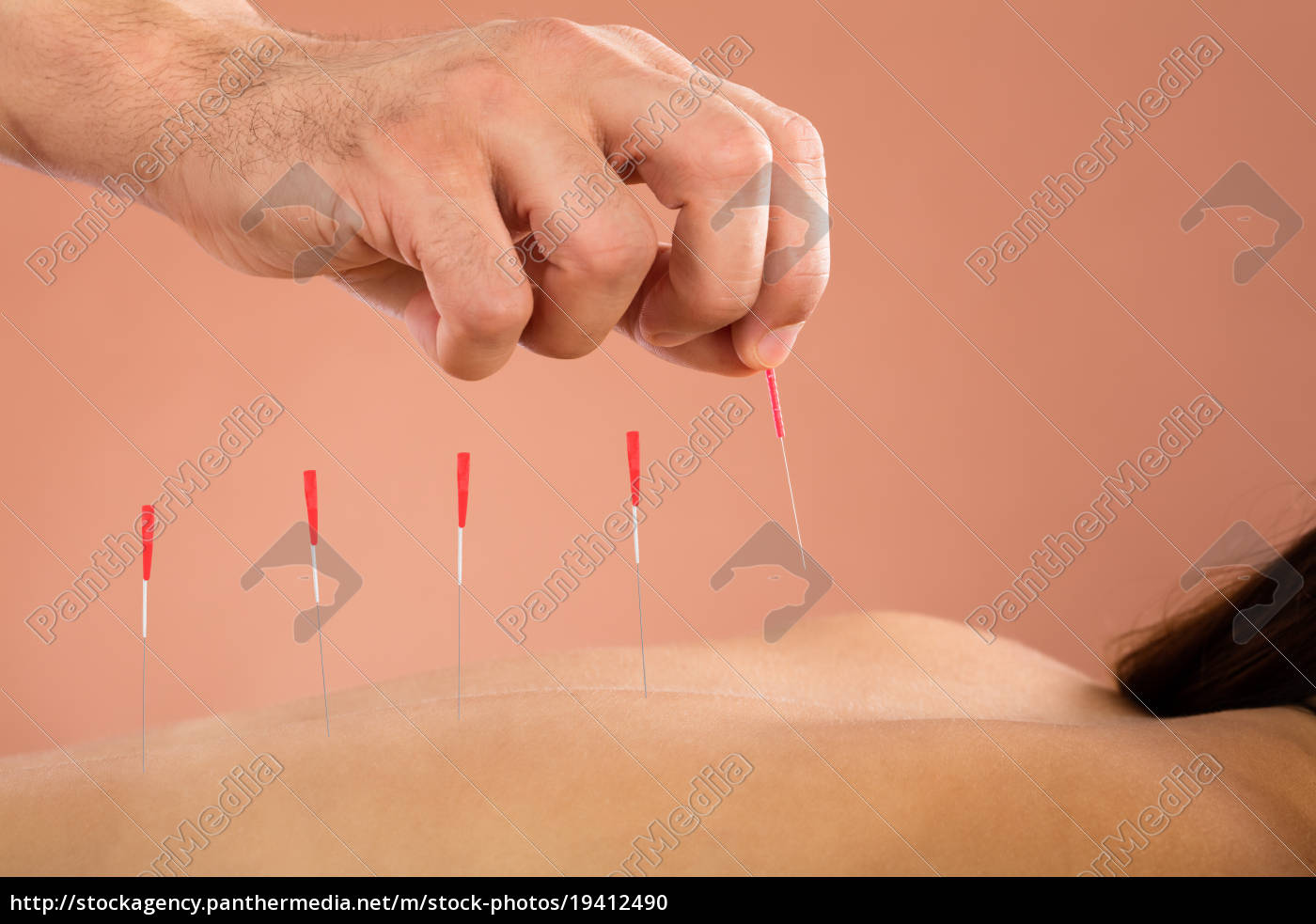 woman, getting, acupuncture, treatment - 19412490