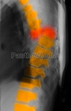 thoracic spine fracture xray complete transection