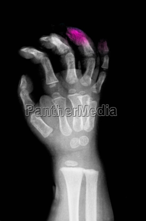 x ray of toddlers hand with