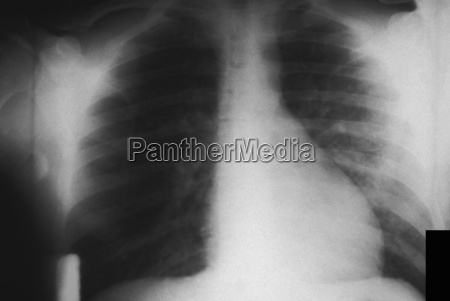 chest x ray of pulmonary infection
