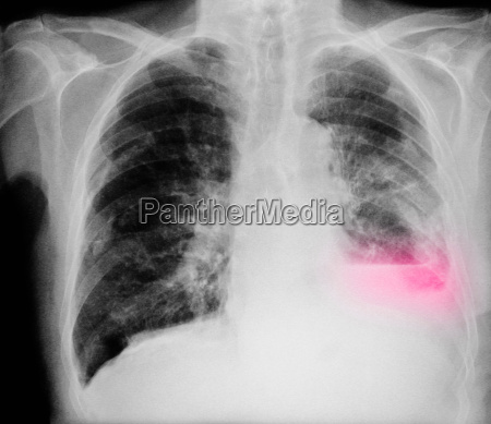 chest x ray of an 84