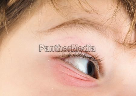 pink eye on a boy child