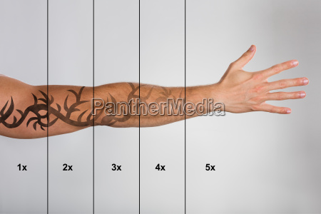 laser tattoo removal on mans hand