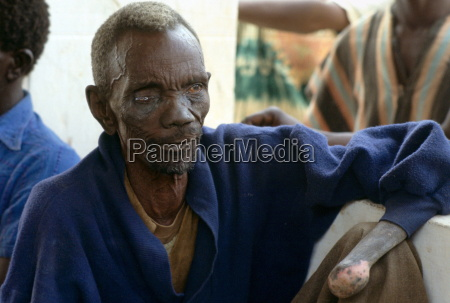 patient suffering from leprosy attending a